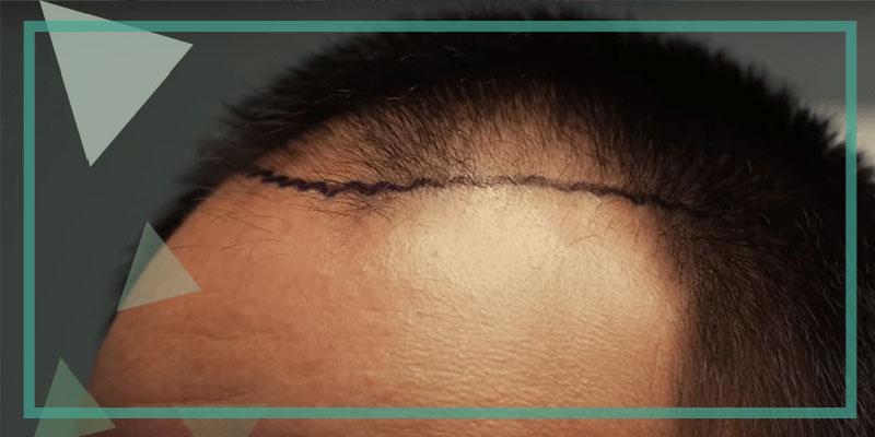 DHI Unshaven Hair Transplant