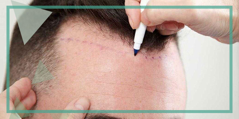 What is Unshaved Hair Transplantation?