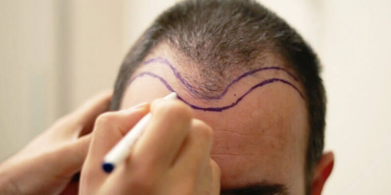 DHI Hair Transplantation