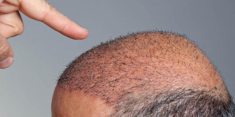 Trapianto di capelli con mega sessione