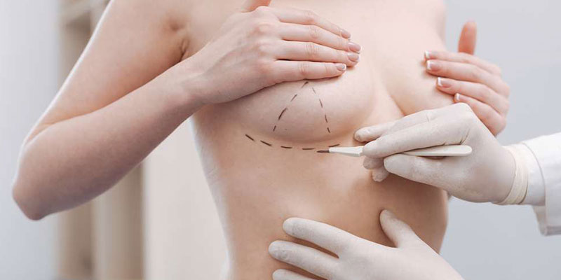 Breast Repair