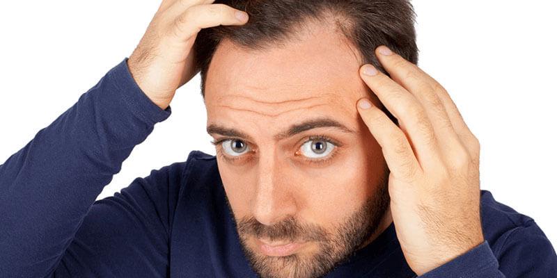 TDF-methode Haartransplantatie