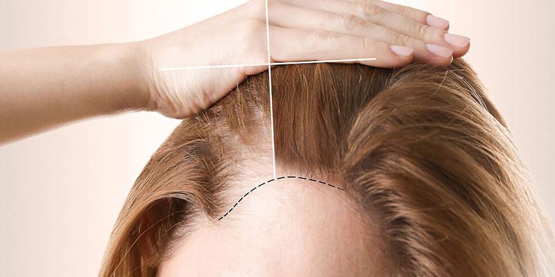 VIP Hair Transplantation and Treatments